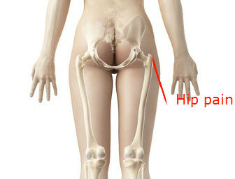 hip pain and stiffness