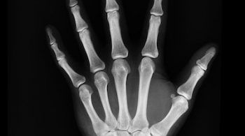 how to reverse osteoporosis